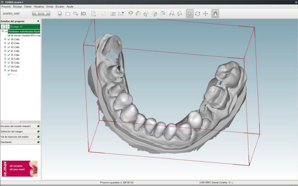 CAD-CAM clínica dental susana ocio